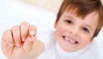 crianca_quebrar_dente_o_que_fazer